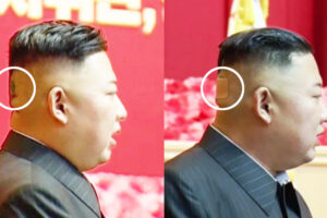 Mysterious spot and bandage appear on back of Kim Jong Un's head